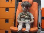 AСАД: Слика окрвављеног дечака jе фалсификат