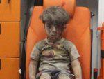 КРВАВО ЛИЦЕ ПРОПАГАНДЕ: Откривена истина о сиријском дечаку, симболу Алепа